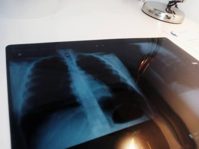 pulmon-mierder